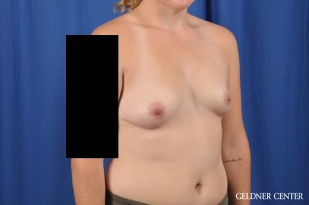 Breast Augmentation: Patient 178 - Before Image 2