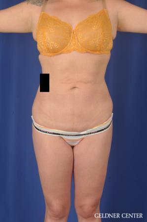 Liposuction: Patient 45 - After Image 1