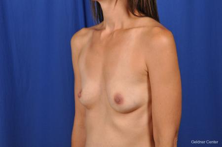 Chicago Breast Augmentation 2376 - Before and After Image 4