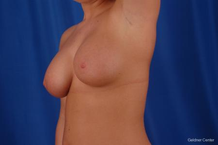 Chicago Breast Augmentation 2633 - Before and After Image 5