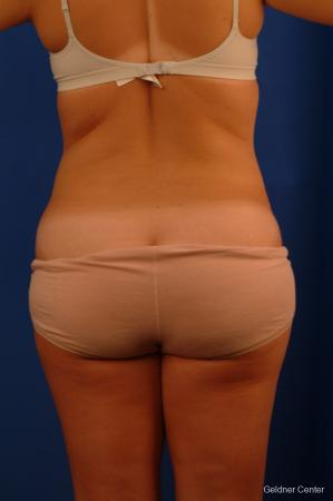 Liposuction: Patient 12 - After Image 4
