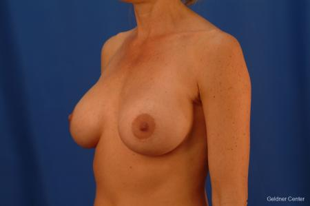 Breast Augmentation Lake Shore Dr, Chicago 2446 -  After Image 3