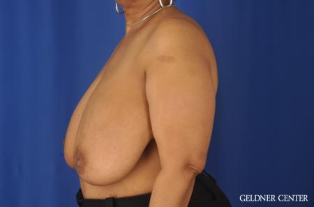 Breast Reduction: Patient 25 - Before and After Image 5