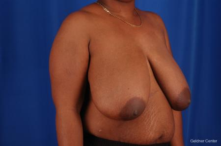 Breast Reduction Hinsdale, Chicago 2334 - Before Image 3