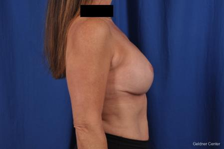 Breast Lift: Patient 43 - After Image 2