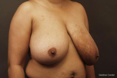 Chicago Breast Reduction 2375 - Before Image 3