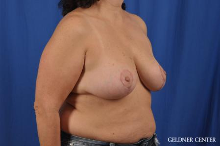 Breast Reduction: Patient 31 - After Image 2