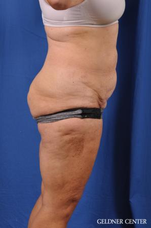 Liposuction: Patient 34 - Before Image 3