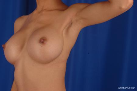 Chicago Breast Augmentation 2339 -  After Image 5