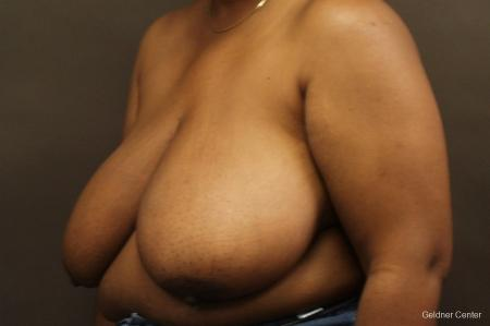 Chicago Breast Reduction 2406 - Before and After Image 4