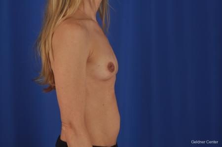 Chicago Breast Augmentation 6653 - Before Image 3