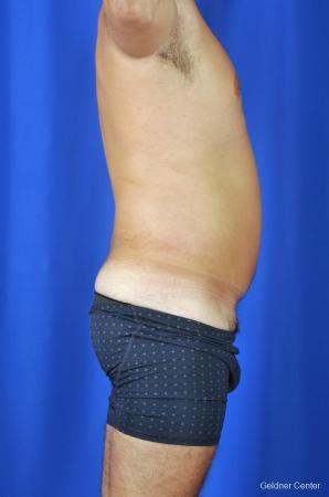 Liposuction For Men: Patient 4 - Before Image 3
