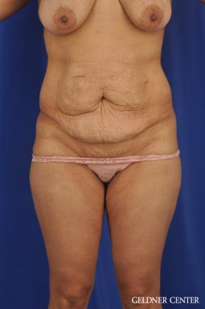 Tummy Tuck: Patient 33 - Before Image 1