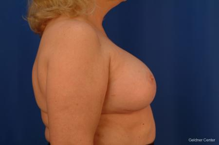 Complex Breast Augmentation Hinsdale, Chicago 2430 -  After Image 2