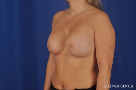 Breast Augmentation: Patient 184 - After Image 4