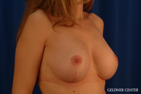 Complex Breast Augmentation: Patient 39 - After Image 2