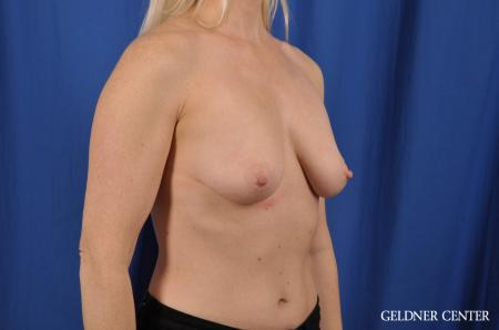 Breast Augmentation: Patient 83 - Before Image 3