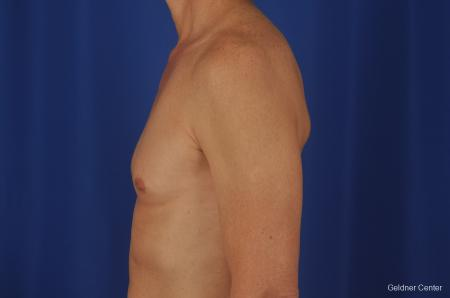Gynecomastia: Patient 2 - Before and After Image 5