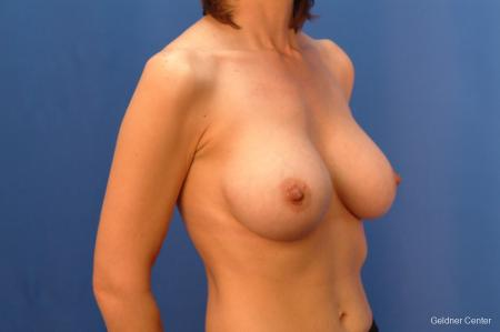 Chicago Complex Breast Augmentation 2415 -  After Image 2