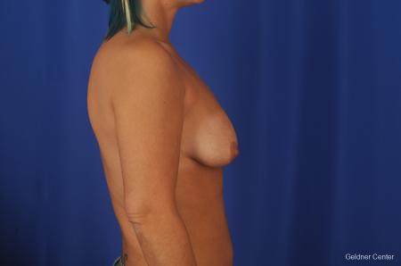 Chicago Complex Breast Augmentation 2336 - Before Image 2