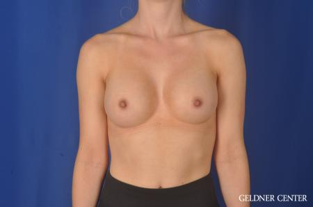 Breast Augmentation Hinsdale, Chicago 11860 -  After Image 1