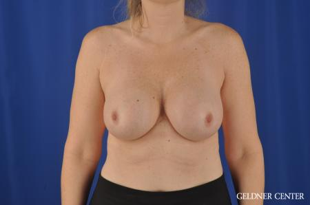 Breast Augmentation Streeterville, Chicago 8749 -  After Image 1