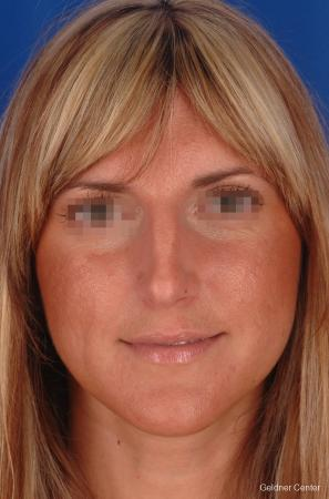 Rhinoplasty: Patient 5 - Before Image 1