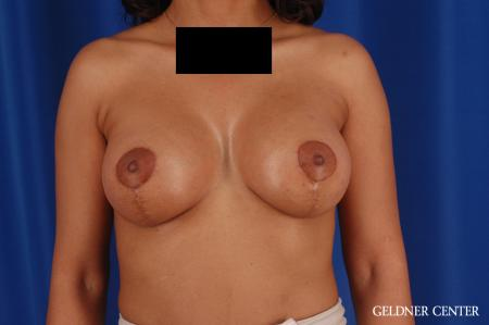 Breast Lift: Patient 54 - After Image 1
