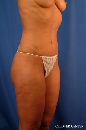 Vaser lipo patient 2624 before and after photos -  After Image 2