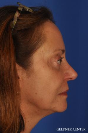 Facelift & Neck Lift: Patient 1 - Before Image 2