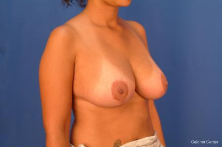 Breast Reduction Lake Shore Dr, Chicago 2417 -  After Image 2
