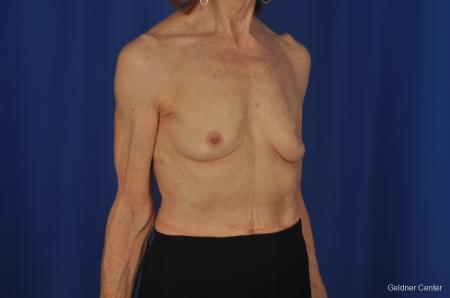 Breast Augmentation Hinsdale, Chicago 2055 - Before Image 3