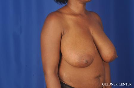 Breast Reduction: Patient 24 - Before Image 2
