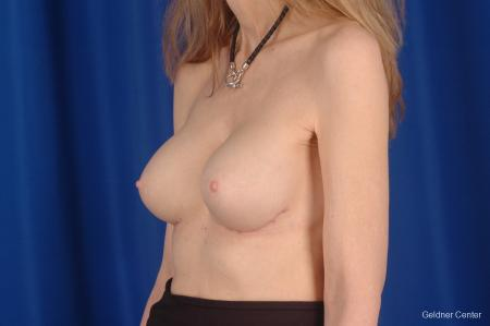 Chicago Breast Augmentation 2397 -  After Image 5