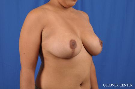 Breast Reduction: Patient 23 - After Image 3