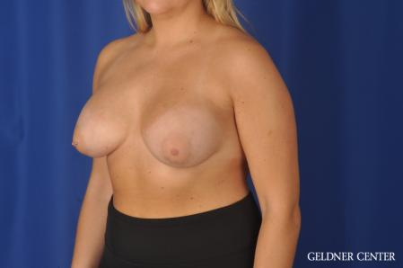 Breast Augmentation: Patient 179 - After Image 4