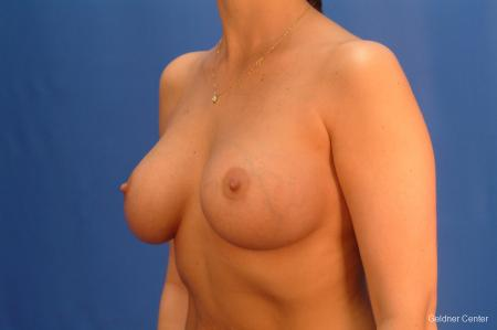 Chicago Breast Augmentation 2432 -  After Image 4