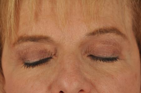 Chicago Eyelid Lift 8744 - Before and After 2