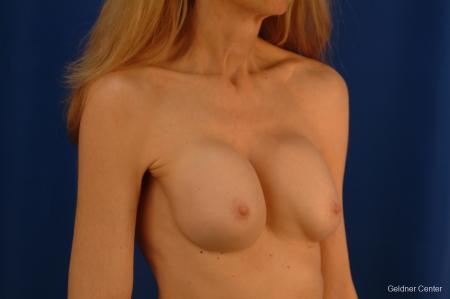 Chicago Breast Augmentation 2397 - Before Image 3