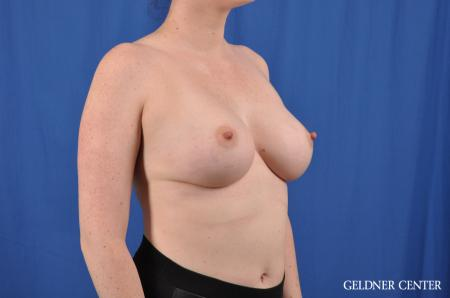 Breast Augmentation: Patient 135 - After Image 3