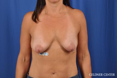 Breast Lift: Patient 42 - Before Image 1