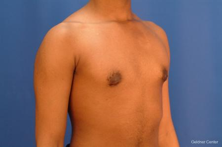 Gynecomastia: Patient 5 - After Image 3
