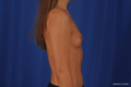Breast Augmentation Streeterville, Chicago 3231 - Before Image 2