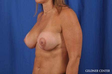 Breast Lift: Patient 42 - After Image 4
