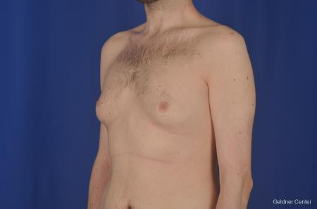 Gynecomastia: Patient 3 - Before and After Image 4