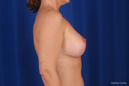 Breast Lift Lake Shore Dr, Chicago 2308 -  After Image 2