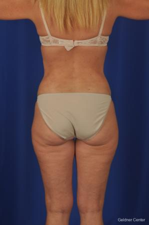Lipoabdominoplasty: Patient 2 - After Image 4