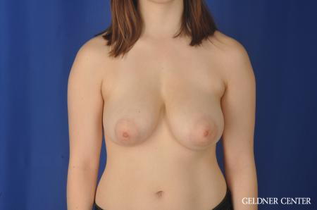 Breast Reduction: Patient 26 - Before Image 1