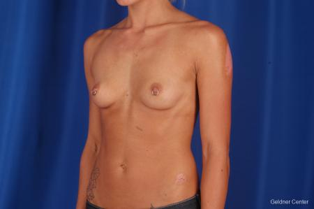 Chicago Breast Augmentation 2328 - Before and After Image 4