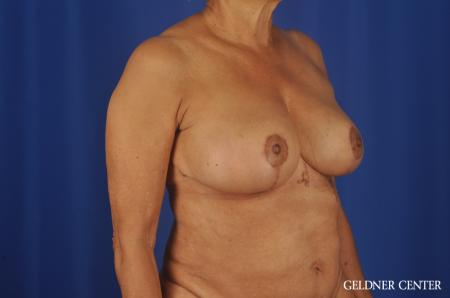 Breast Reduction Streeterville, Chicago 6650 -  After 2